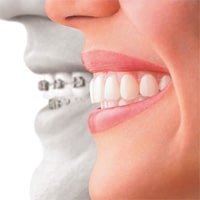Braces vs Invisalign | Braces and Smiles | Queens NY Best Orthodontist for Invisalign and Clear Braces | Affordable Cost | Reviews | Insurance invisalign Braces and Smiles | Invisalign Orthodontist in Forest Hills, Queens, NY feature clear choice - Queens NY Orthodontist for Invisalign and Clear Braces