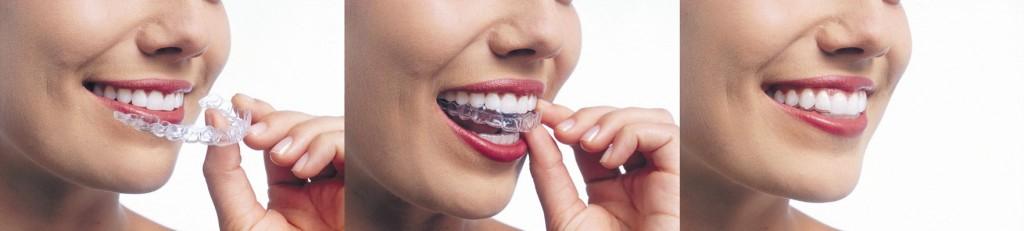 PDCD0067_LR_InvisalignTrio1 invisalign Invisalign ® PDCD0067 LR InvisalignTrio1 1024x231 - Queens NY Orthodontist for Invisalign and Clear Braces