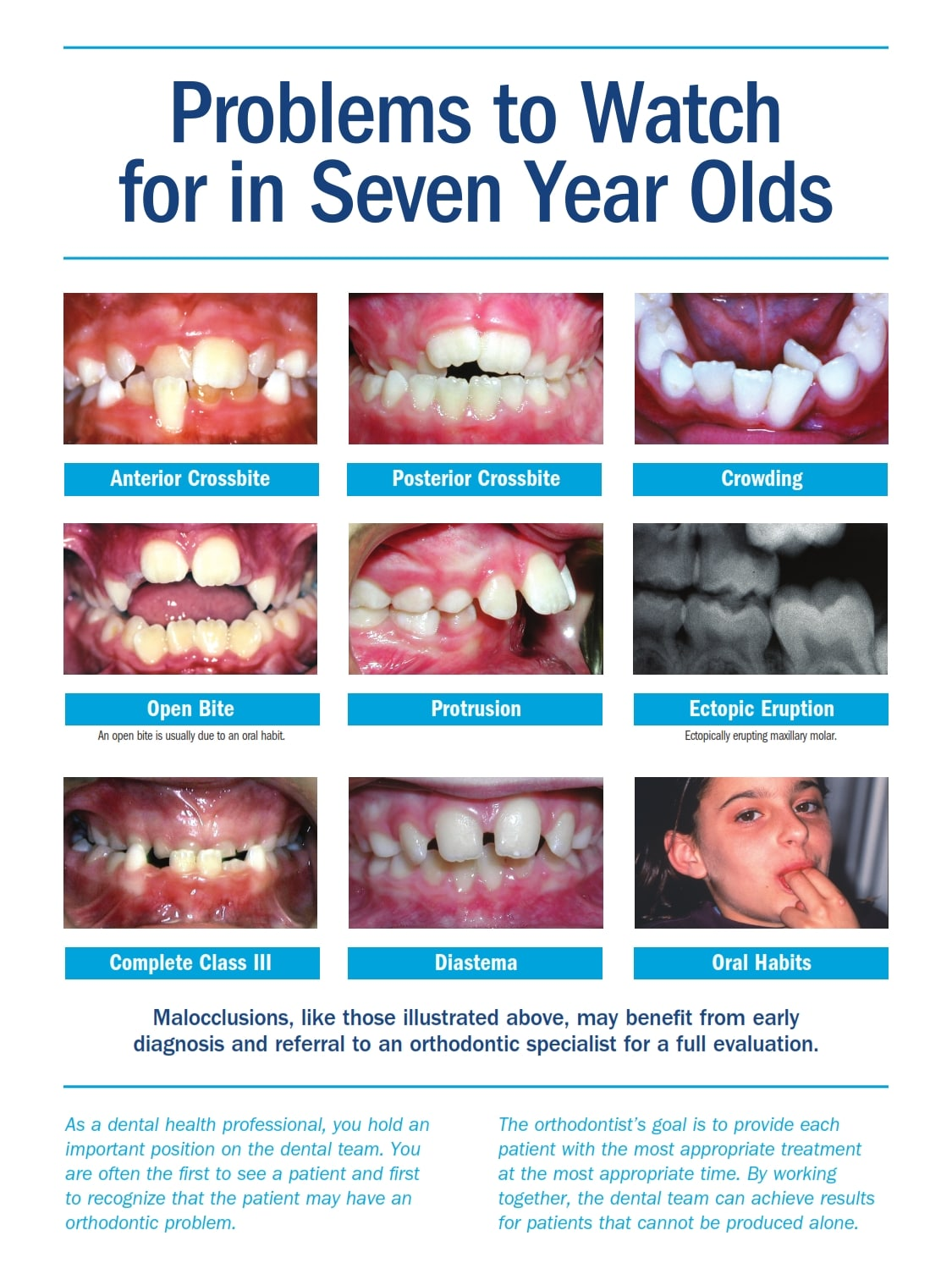 Problems to Watch for in Seven Year Olds children First Orthodontic Check-Ups No Later than Age 7 PTWF 7yr Olds 14 hl2 002 - Queens NY Orthodontist for Invisalign and Clear Braces