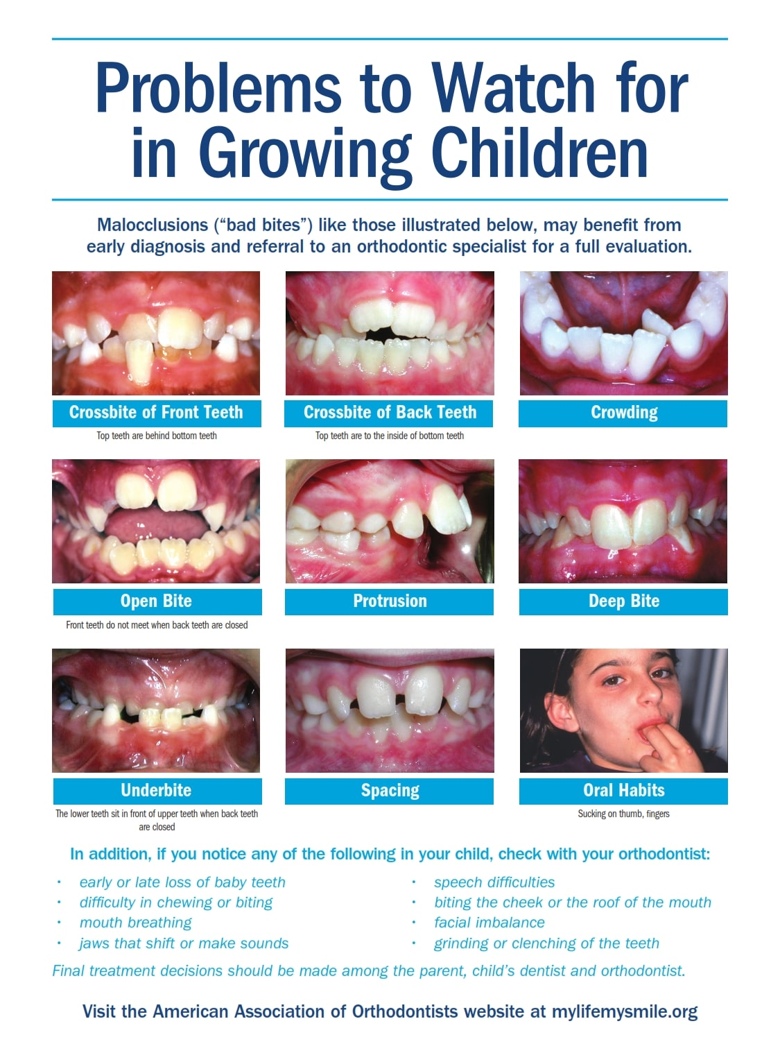 Problems to Watch for in Growing_Children - Forest Hills Top Orthodontist for Invisalign and Braces children Orthodontic Problems to Watch for in Children PTWF Growing Children 14 lh2 002 - Queens NY Orthodontist for Invisalign and Clear Braces