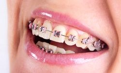 Five Tips For Cleaning Braces In Queens NY