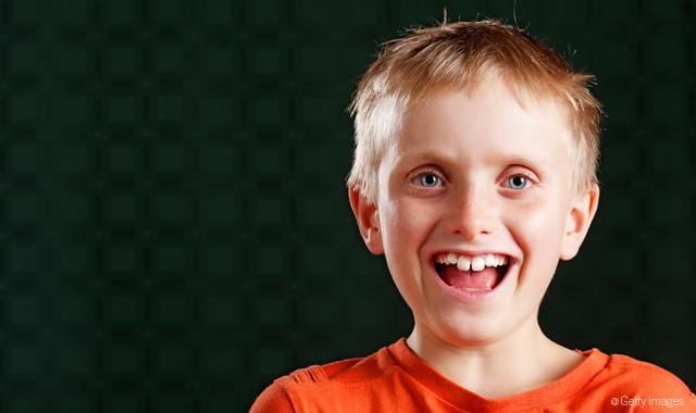 Buck Teeth – Known As Malocclusion Or Overbite